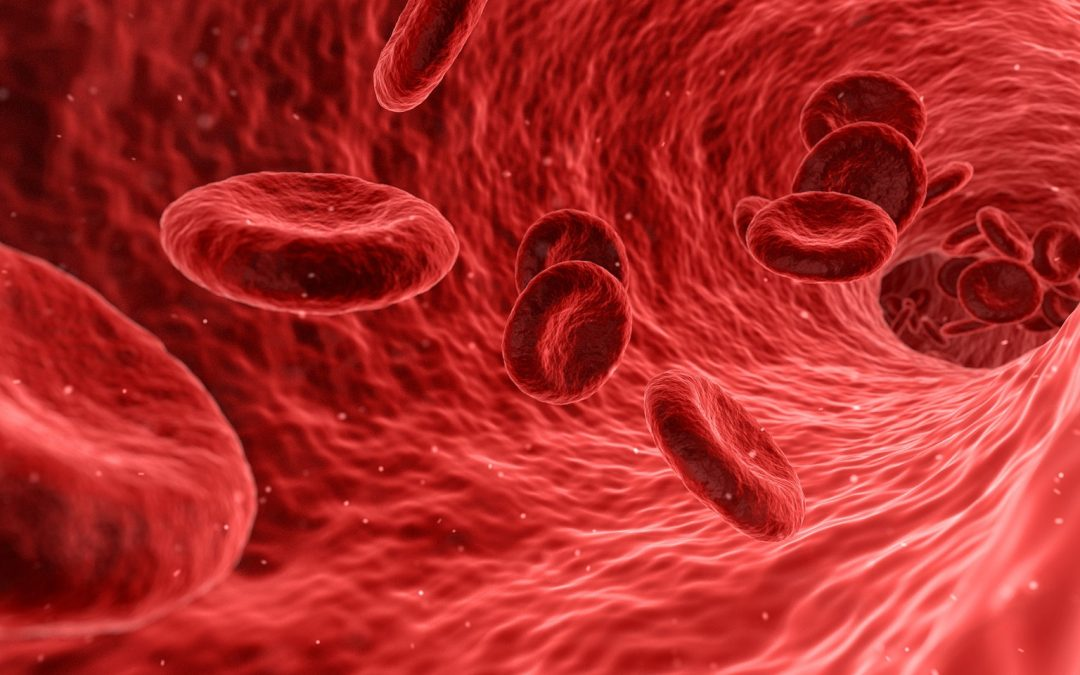 Cholesterol: Is Stroke in Your Blood?